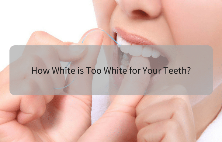 How white is too white for your teeth_