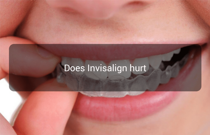 Does Invisalign hurt