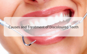 Causes and Treatment of Discoloured Teeth